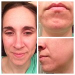 Rodan + Fields Skin Care Update